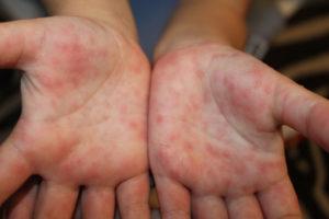 Санитарные службы Пермского края бьют тревогу по поводу ситуации с энтеровирусом
