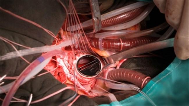 Уникальная операция на сердце проведена пермскими хирургами