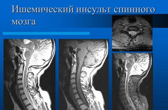 Пермские врачи уберегли пациентку от инвалидности после инсульта