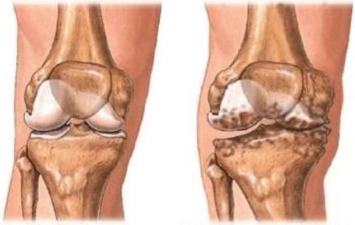 Пермские врачи испытали инновационный метод лечения коленных суставов